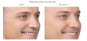 Botox Before and After 3 | Burbank Botox Injections